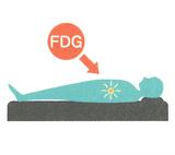 FDGを体内に取り込む