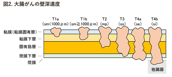 大腸がんの壁深達度の図画像