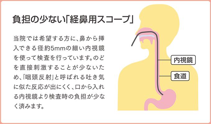 経鼻用スコープのイラスト画像