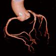不整脈の冠動脈
