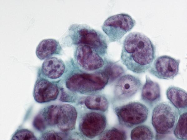 胸水中の肺がん細胞の画像