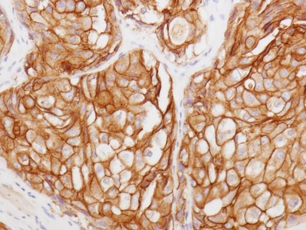 浸潤性乳管がんの画像
