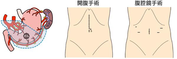 胃がんのイラスト画像