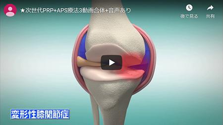 PRP療法の説明画像