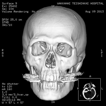 CT画像紹介4